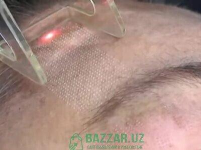 Лазерная шлифовка. Лазерная эпиляция. Лазерная ваг